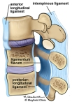 Spinal Ligaments (some, not all) - Notice the Posterior Longitudinal Ligament and the Anterior Longitundal Ligament. Illustration Credit: M. Headworth via MayfieldClinic.com